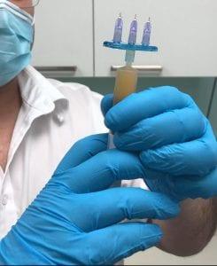 הפלסמה המופקת מדם המטופל